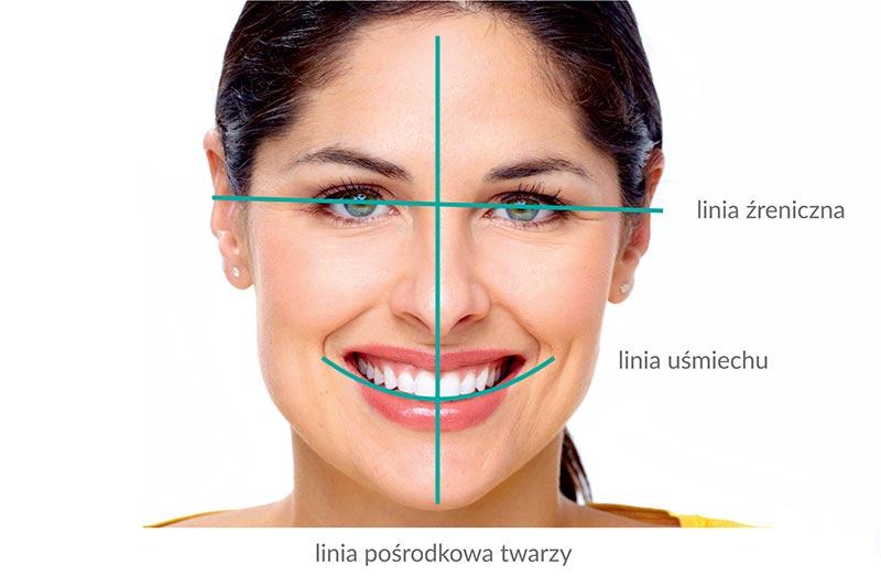 smile-design_web1
